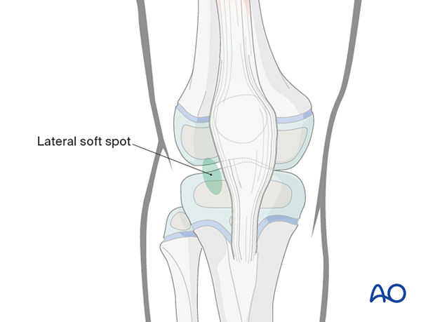 Lateral soft spot