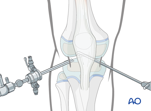 Standard arthroscopic approach to the knee with anteromedial and anterolateral portals
