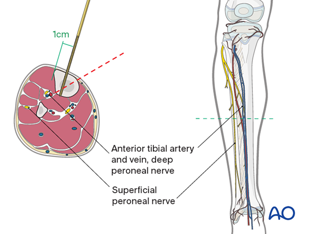 Safe zone for pin insertion in the midshaft of the tibia