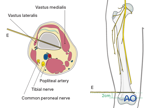 Safe zone for pin insertion in the distal third