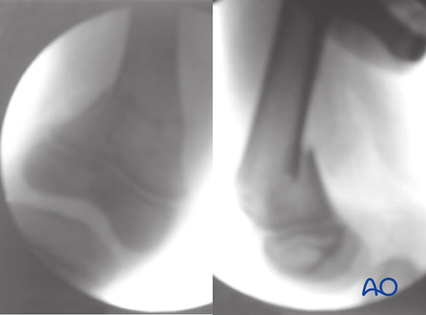 X-ray of a simple, complete metaphyseal fracture of the distal femur