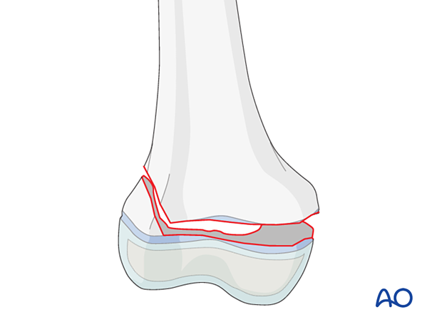 Simple epiphysiolysis with metaphyseal wedge (Salter-Harris II) of the distal femur