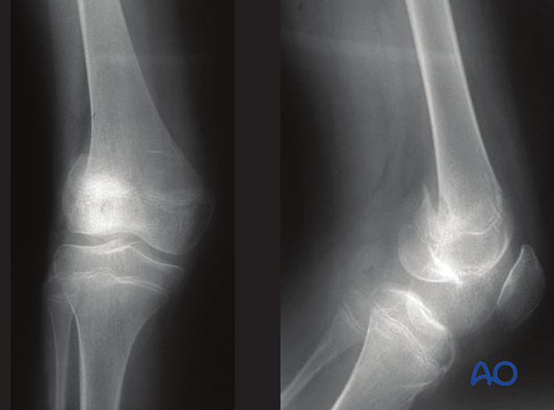 X-ray of a simple epi-/metaphyseal fracture (Salter-Harris IV) of the distal femur