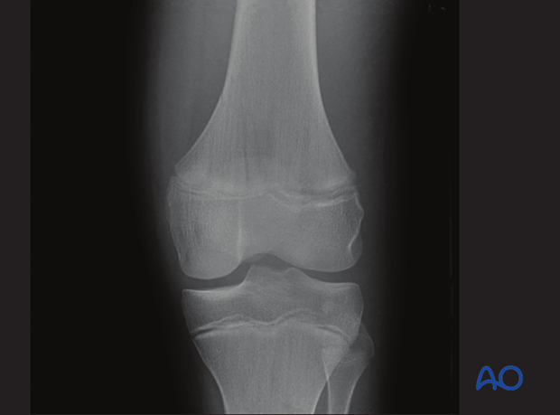 X-ray of a simple epiphysiolysis with metaphyseal wedge (Salter-Harris II) of the distal femur