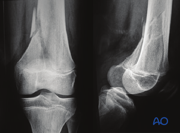X-ray of a multifragmentary epiphysiolysis with metaphyseal wedge (Salter-Harris II) of the distal femur