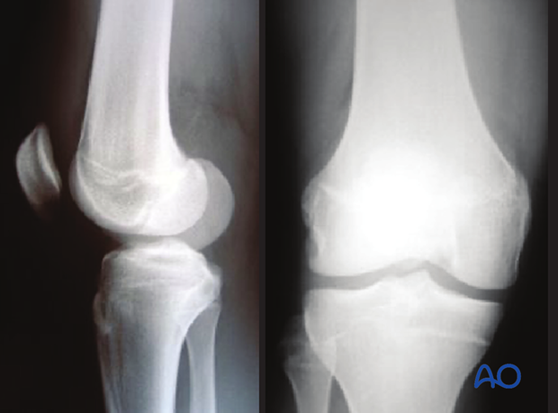 X-ray of a simple epiphyseal fracture (Salter-Harris III) of the distal femur