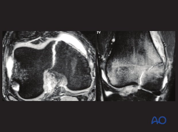MRI of a simple epiphyseal fracture (Salter-Harris III) of the distal femur