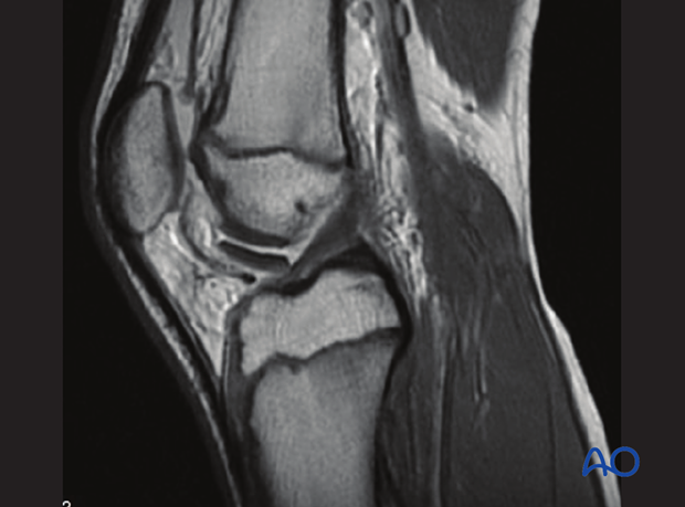 MRI of an intraarticular flake fracture of the distal femur