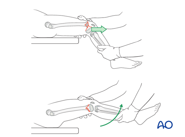 Closed reduction of flexion-type fracture