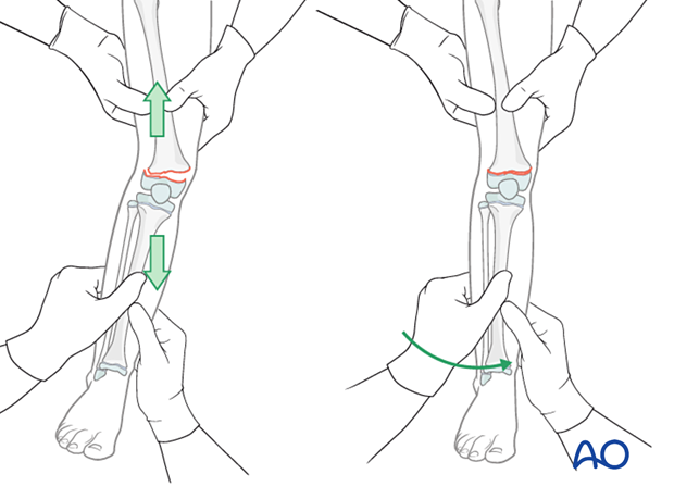 Closed reduction of valgus displaced fracture