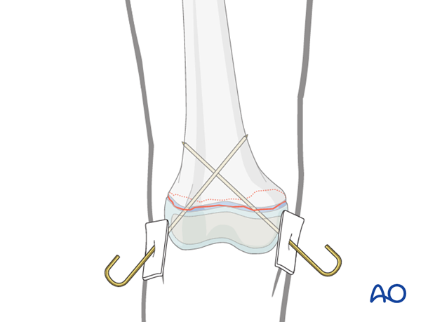 K-wire-wire fixation of distal femoral fracture