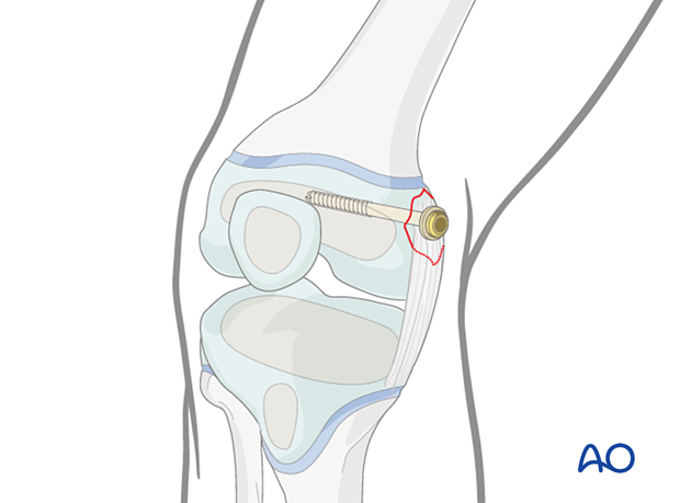 Lag screw fixation of a medial avulsion fracture of the distal femur