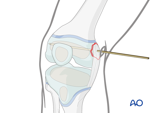 Reduced avulsion fracture secured with the guide wire