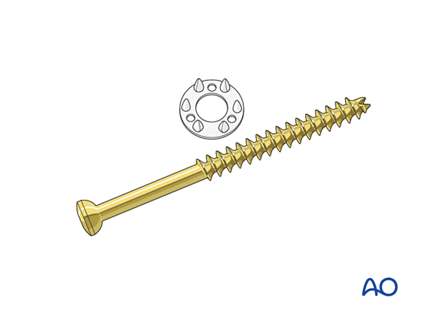 Partially threaded screw and ligament washer