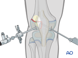 Reduction and screw fixation with arthroscopic assistance