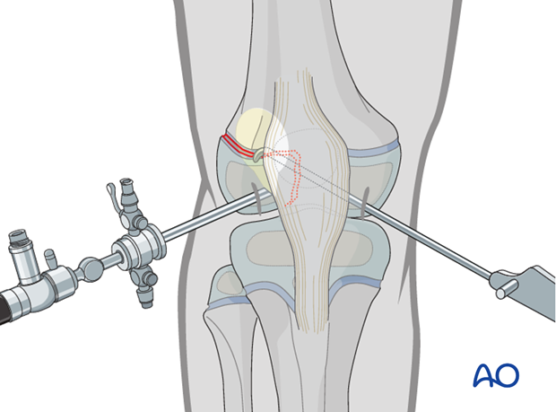 Arthroscopic approach for reduction of a Salter-Harris III fracture