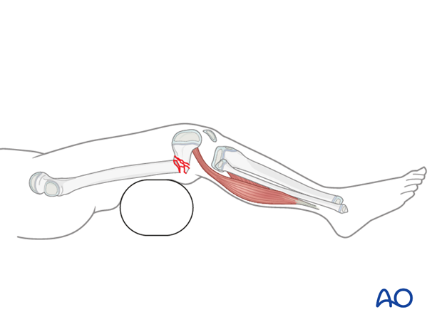 Bolster placed posterior to the fracture
