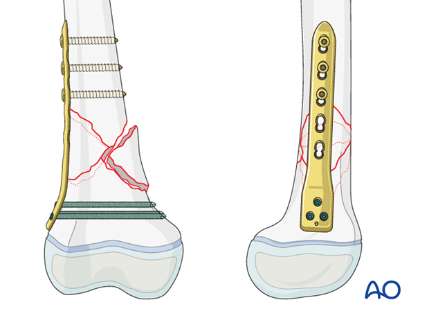 Plate fixation of a metaphyseal distal femur fracture
