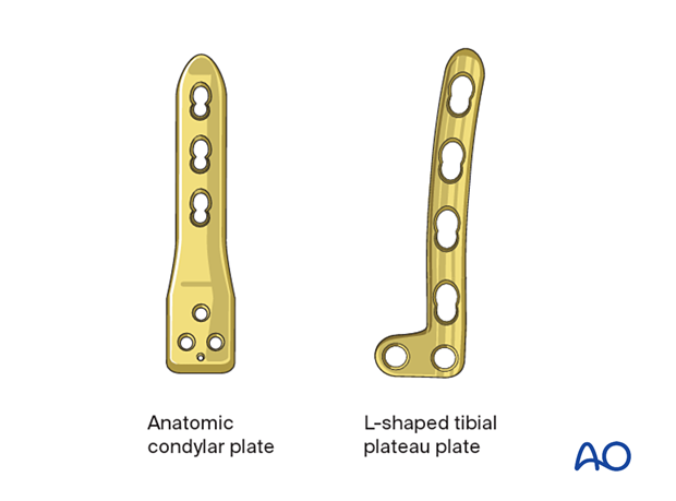 Plate types for fixation of distal femur fractures