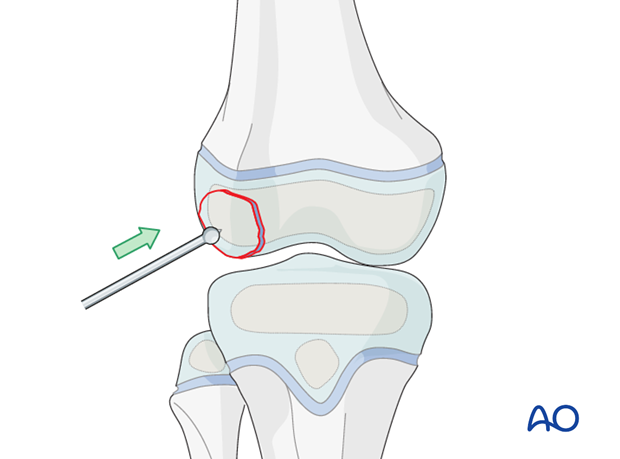 Reduction of the osteochondral fragment with a small ball-spike pusher