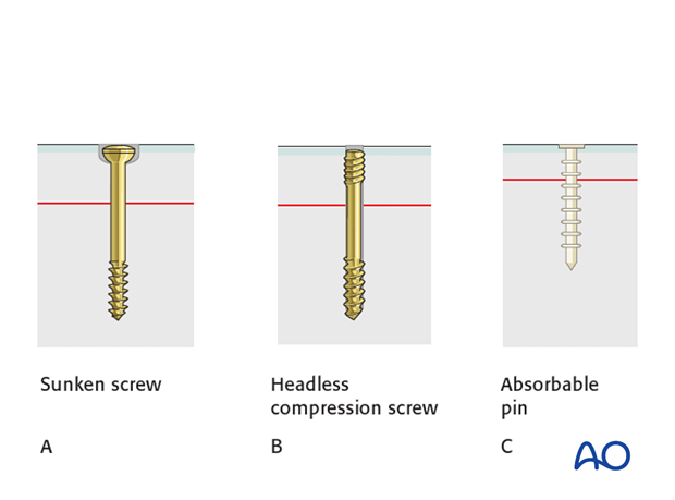 open reduction pin or screw fixation