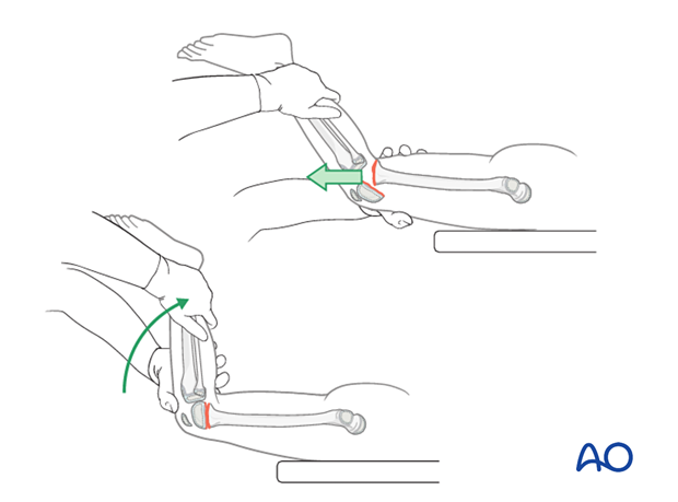 Prone patient positioning and reduction