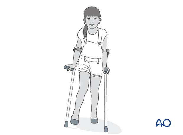 Touch-weight bearing with crutches