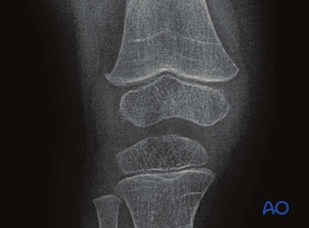 X-ray of the knee showing growth lines