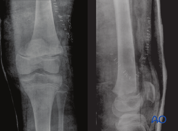 X-ray of a partially reduced Salter-Harris II fracture with a small medial metaphyseal fragment