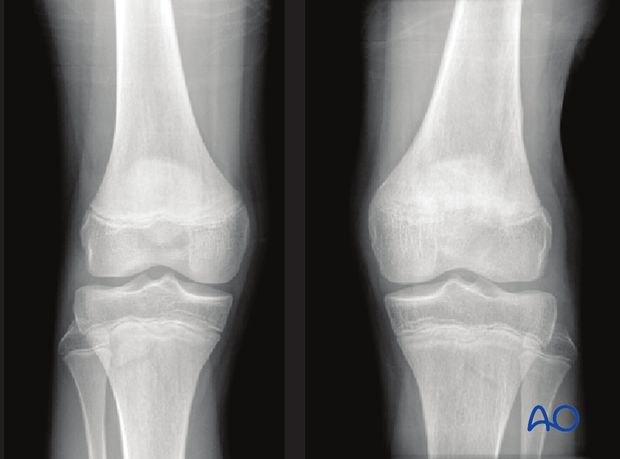 Unequal closing of the distal femoral physis