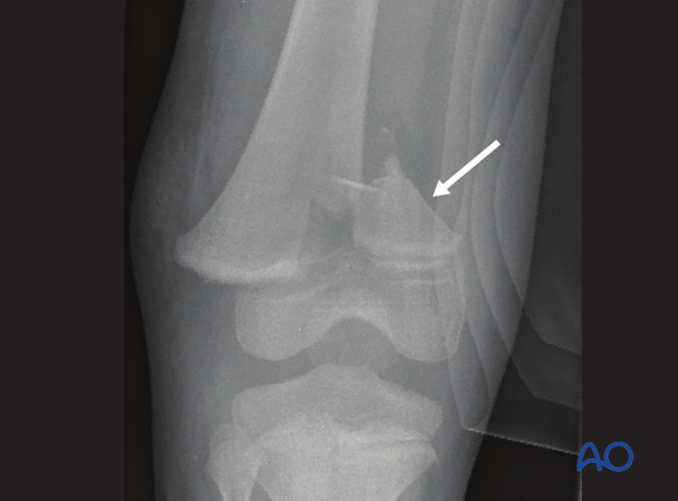 X-ray of a displaced Salter-Harris II fracture
