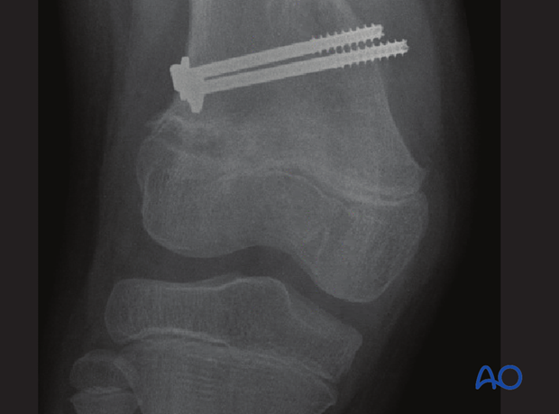Significant valgus deformity due to cessation on the lateral side
