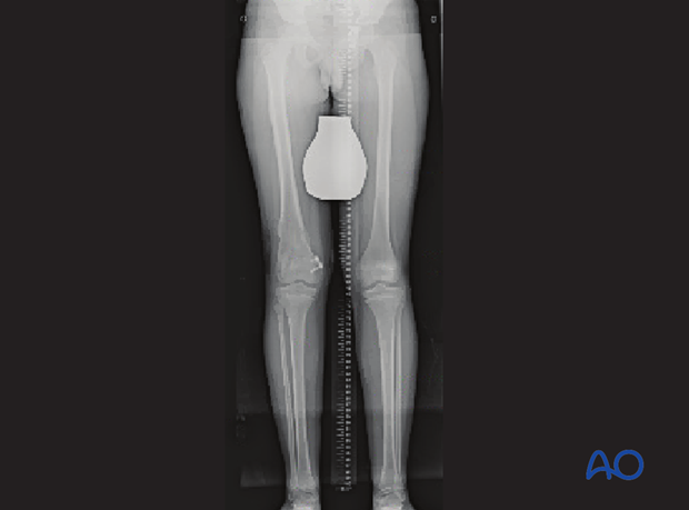 Standing x-ray showing gradual deformity correction with leg lengthening and completion of epiphysiodesis on the medial side
