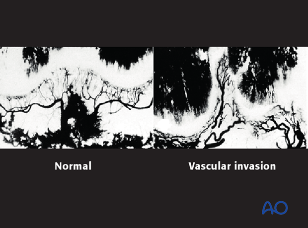 Vascular invasion into the fracture plane of a Salter-Harris IV injury