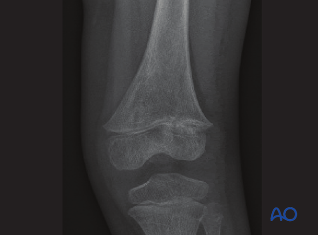 X-ray showing irregularity in the lateral half of the growth plate suggesting early bony bar formation
