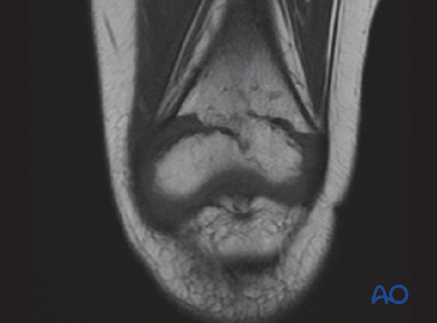 MRI imaging visualizing the growth plate and demonstrating a physeal bar
