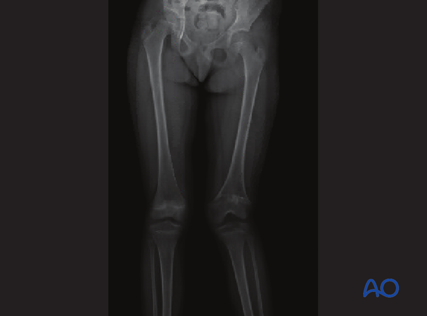 X-ray showing valgus deformity of the knee