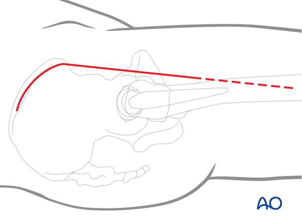 Skin incision for hip anterior (Iliofemoral or Smith-Petersen) approach