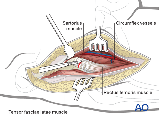 Identify, divide and ligate the lateral femoral circumflex vessels distally. Release the direct head of rectus femoris...