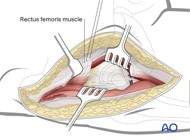 If necessary, fully release the indirect and direct head of rectus femoris