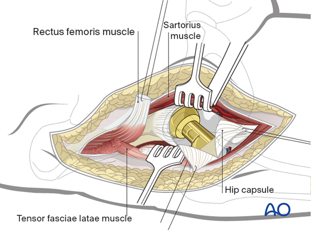 A T-shaped incision, with retention sutures medially and laterally, allows exposure of the femoral head and neck