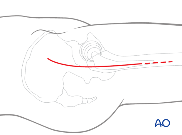Skin incision for hip anterolateral (Watson-Jones) approach