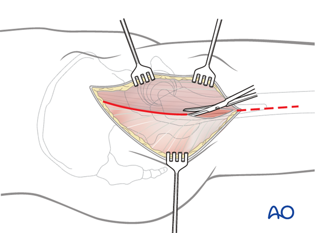 Incise the fascia lata over the femur and extend this incision proximally along the posterior border of the tensor fascia lata
