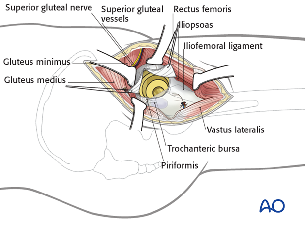 …and place two retraction sutures, anteriorly and posteriorly. Protect the acetabular labrum