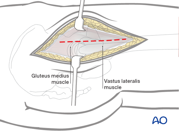 Divide the fascia lata over the greater trochanter, extending it distally over the proximal femoral shaft and proximally
