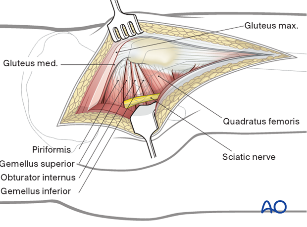 Protection of sciatic nerve