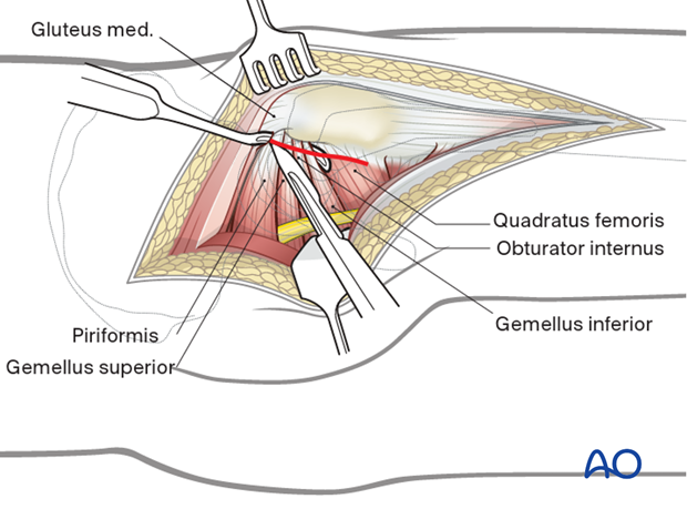 Exposure of short rotator tendons