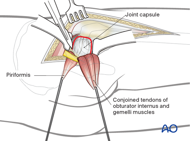 Posterior blunt dissection
