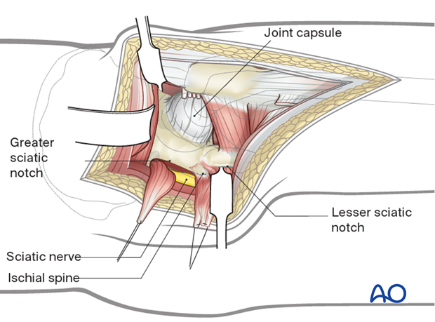 Exposure of the posterior wall and column in a Kocher-Langenbeck approach to the hip
