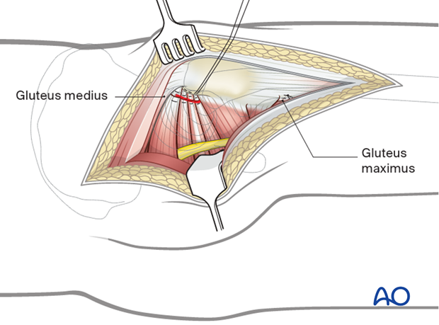 Capsule and tendons repair in a Kocher-Langenbeck approach to the hip
